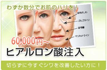 わずか数分でお肌のハリを! 30,000円~ ヒアルロン酸注入 切らずに今すぐシワを改善したい方に!