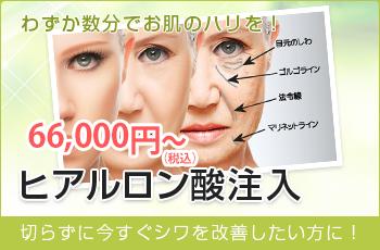 わずか数分でお肌のハリを! 66,000円~ ヒアルロン酸注入 切らずに今すぐシワを改善したい方に!